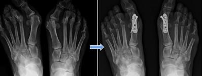Im Röntgenbild dargestellt: ein Hallux valgus